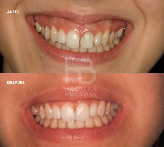 antes y después en tratamientos en estética dental