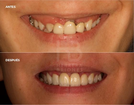 antes y después en estética dental