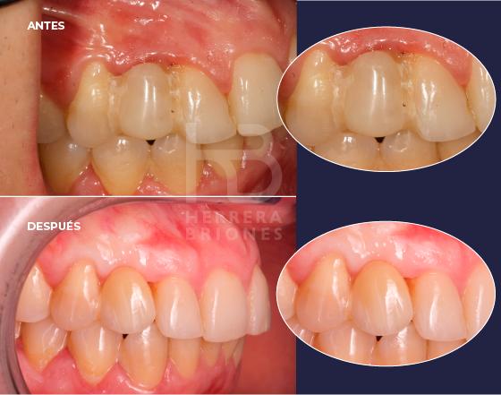 Tratamientos en estética dental