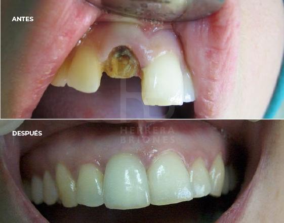 Tratamiento de implantología dental