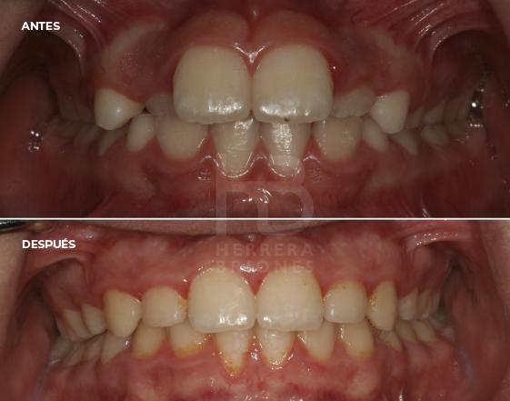 antes y después en tratamiento de ortodoncia