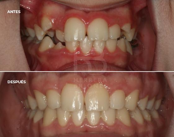antes y después en ortodoncias