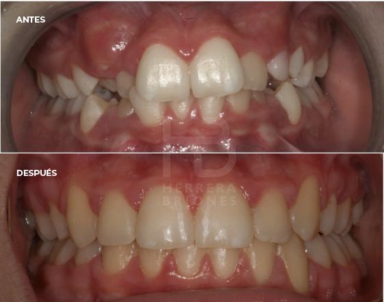 antes y después en ortondocia