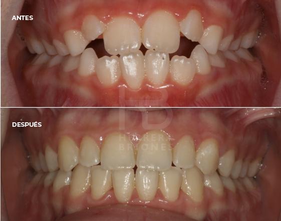 Tratamientos en ortodoncia