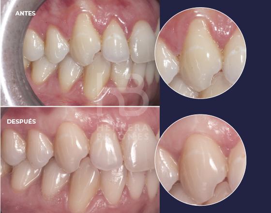 Tratamientos en periodoncia