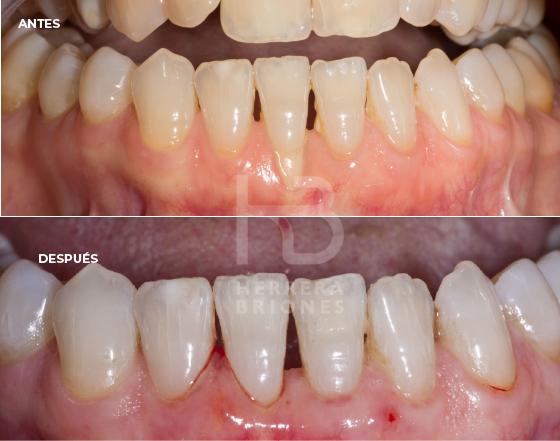 Antes y después en periodoncia