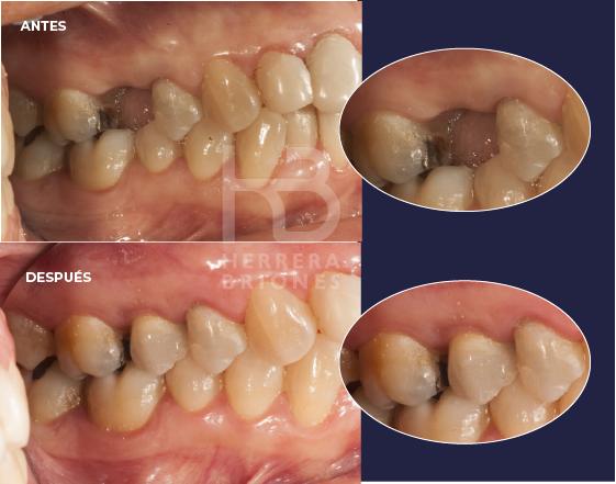 antes y después en implantes