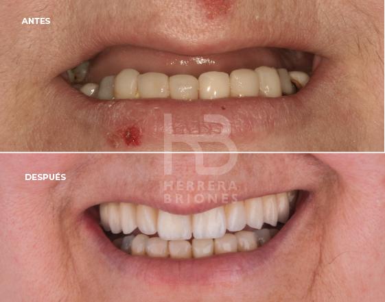 antes y después en implantes dentales