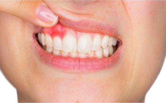 periodoncias