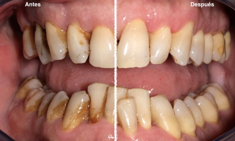 Tratamiento de gingivitis