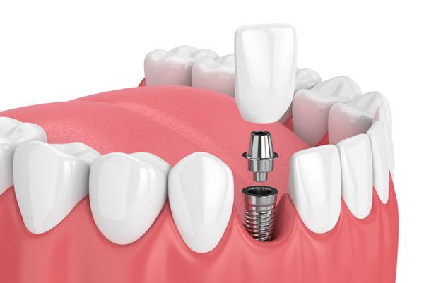Implantes dentales de titanio en Málaga