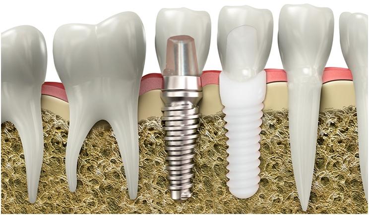 Implantes dentales de zirconio