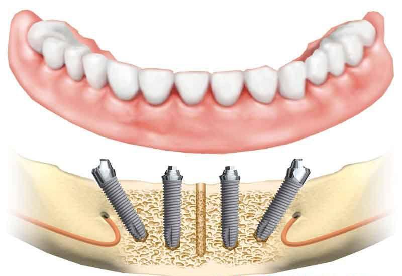 Implantes dentales yuxtaóseos