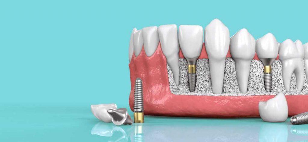 Tipos de implantes dentales que existen