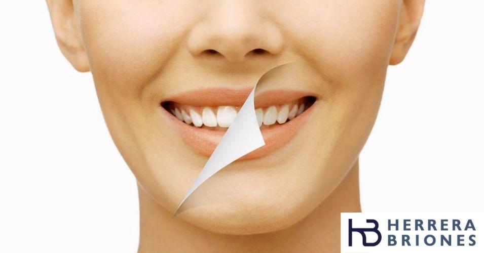 Manchas dentales blancas por fluorosis