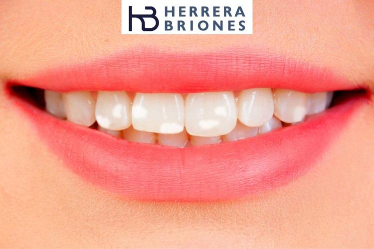 Manchas blancas en los dientes