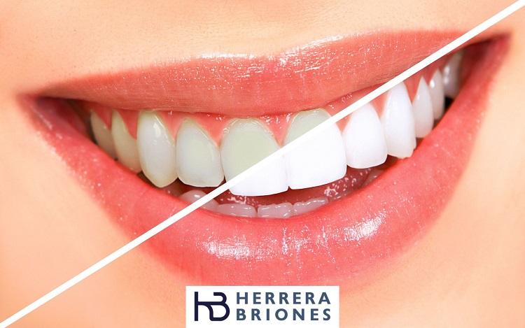 Blanqueamiento dental para quitar manchas blancas en los dientes