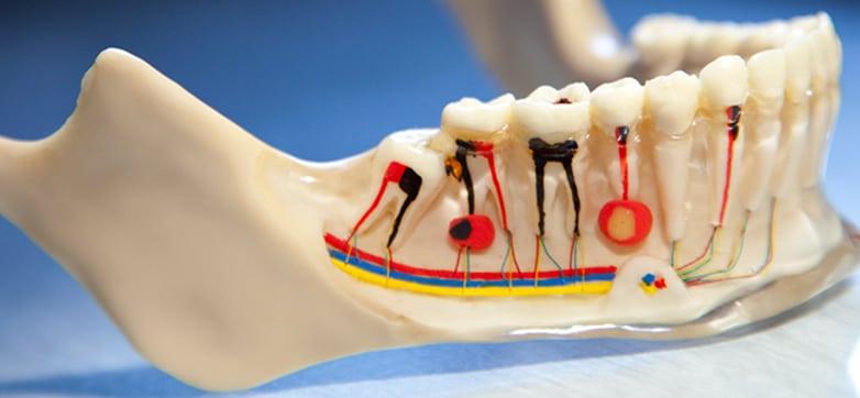 Prevención de endodoncias